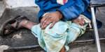 INDIA, POOR, LEPROSY